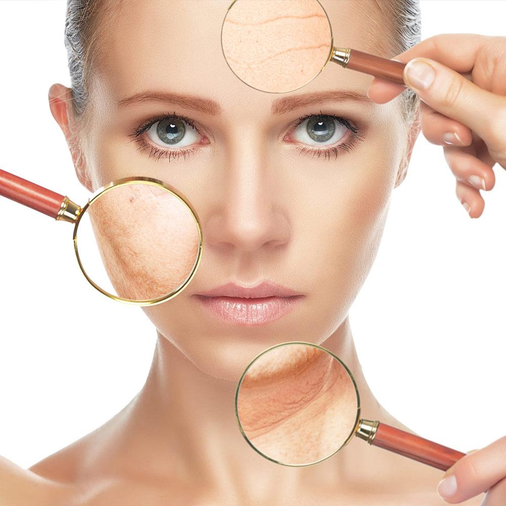masque anti acné curcuma facile